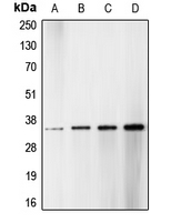 CDC2 + CDK2 + CDK3 Antibody - Western blot analysis of CDK1/2/3 (pT14) expression in HT29 hydroxyurea-treated (A); HeLa (B); NIH3T3 (C); A431 (D) whole cell lysates.