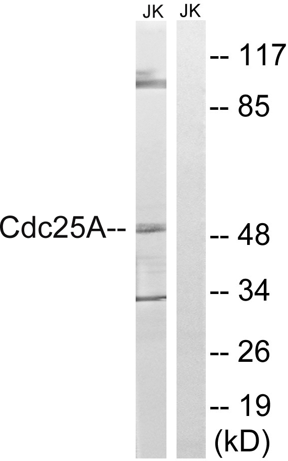 Western blot analysis of lysates from Jurkat cells, using CDC25A Antibody. The lane on the right is blocked with the synthesized peptide.