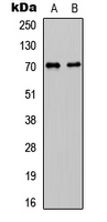 Western blot analysis of CDC25A expression in HeLa (A); mouse liver (B) whole cell lysates.