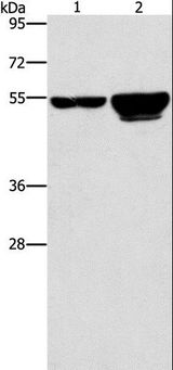 Western blot analysis of 231 and A549 cell, using CDC25A Polyclonal Antibody at dilution of 1:300.
