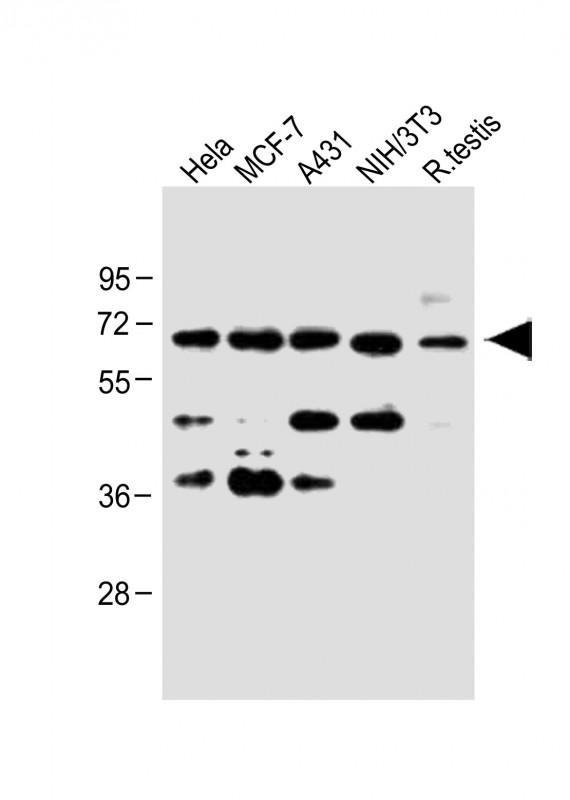 All lanes: Anti-CDC25A (S124) at 1:1000 dilution Lane 1: Hela whole cell lysate Lane 2: MCF-7 whole cell lysate Lane 3: A431 whole cell lysate Lane 4: NIH/3T3 whole cell lysate Lane 5: Rat testis lysate Lysates/proteins at 20 µg per lane. Secondary Goat Anti-Rabbit IgG, (H+L), Peroxidase conjugated at 1/10000 dilution. Predicted band size: 59 kDa Blocking/Dilution buffer: 5% NFDM/TBST.