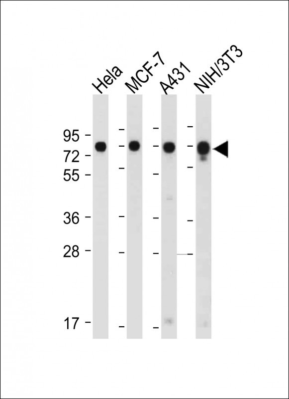 All lanes: Anti-CDC25A (S124) at 1:2000 dilution Lane 1: Hela whole cell lysate Lane 2: MCF-7 whole cell lysate Lane 3: A431 whole cell lysate Lane 4: NIH/3T3 whole cell lysate Lysates/proteins at 20 µg per lane. Secondary Goat Anti-Rabbit IgG, (H+L), Peroxidase conjugated at 1/10000 dilution. Predicted band size: 59 kDa Blocking/Dilution buffer: 5% NFDM/TBST.