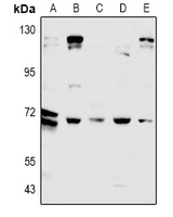 Western blot analysis of CDC25A expression in CT26 (A), PC12 (B), A549 (C), LO2 (D), Hela (E) whole cell lysates.