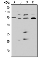 Western blot analysis of CDC25A (pS82) expression in Hela (A), HCT116 (B), NIH3T3 (C), PC12 (D) whole cell lysates.
