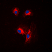 Immunofluorescent analysis of CDC25A staining in MCF7 cells. Formalin-fixed cells were permeabilized with 0.1% Triton X-100 in TBS for 5-10 minutes and blocked with 3% BSA-PBS for 30 minutes at room temperature. Cells were probed with the primary antibody in 3% BSA-PBS and incubated overnight at 4 C in a humidified chamber. Cells were washed with PBST and incubated with a DyLight 594-conjugated secondary antibody (red) in PBS at room temperature in the dark. DAPI was used to stain the cell nuclei (blue).