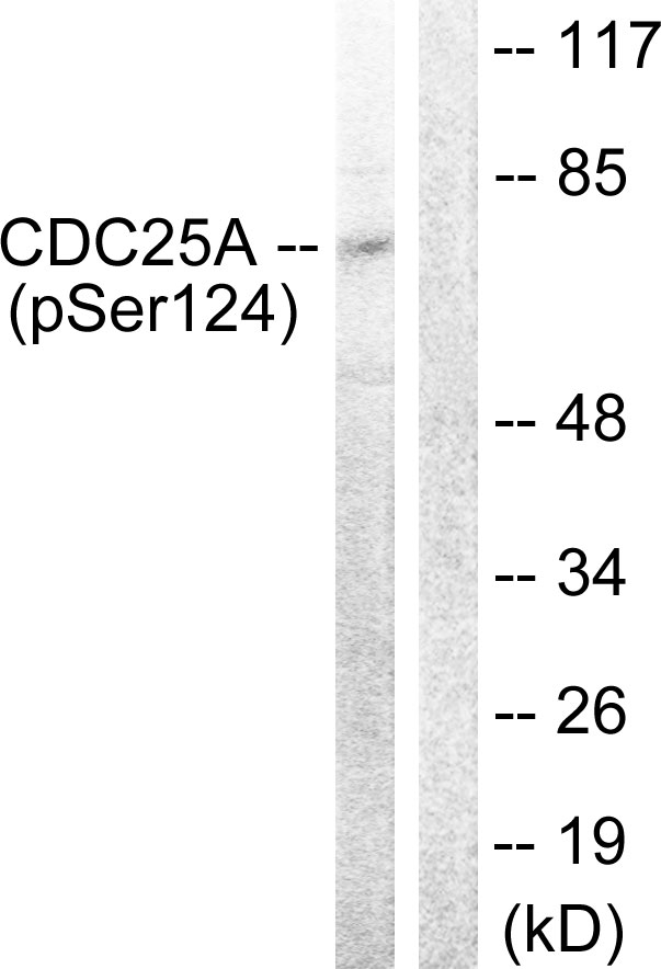 Western blot analysis of lysates from 293 cells treated with UV 15', using CDC25A (Phospho-Ser124) Antibody. The lane on the right is blocked with the phospho peptide.