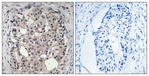 IHC of paraffin-embedded human breast carcinoma, using CDC25A (Phospho-Ser178) Antibody. The sample on the right was incubated with synthetic peptide.