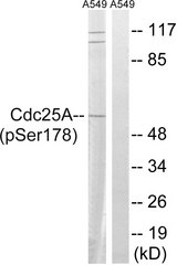 Western blot analysis of lysates from A549 cells treated with UV 15', using CDC25A (Phospho-Ser178) Antibody. The lane on the right is blocked with the phospho peptide.