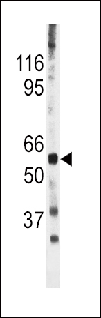 The anti-Phospho-CDC25A-S278 antibody is used in Western blot to detect Phospho-CDC25A-S278 in mouse heart tissue lysate