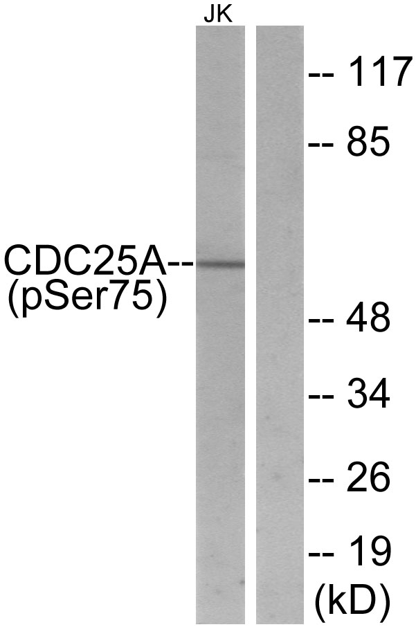 Western blot analysis of lysates from Jurkat cells treated with UV, using CDC25A (Phospho-Ser75) Antibody. The lane on the right is blocked with the phospho peptide.