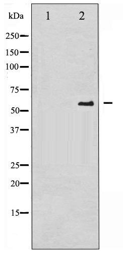 Western blot of CDC25A phosphorylation expression in UV treated A2780 whole cell lysates,The lane on the left is treated with the antigen-specific peptide.