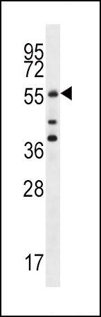Cdc25A Antibody (S78) western blot of MCF-7 cell line lysates (35 ug/lane). The Cdc25A antibody detected the Cdc25A protein (arrow).