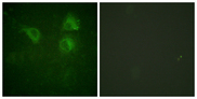 Immunofluorescence analysis of HUVEC cells, using CDC25B Antibody. The picture on the right is blocked with the synthesized peptide.