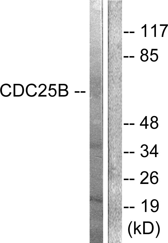 CDC25B Antibody - Western blot analysis of lysates from Raw264.7 cells, treated with Hu 2nM 24h, using CDC25B Antibody. The lane on the right is blocked with the synthesized peptide.