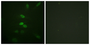 Immunofluorescence analysis of HeLa cells, using CDC25B Antibody. The picture on the right is blocked with the synthesized peptide.