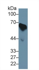 CDC25B Antibody - Western Blot; Sample: Human Serum; Primary Ab: 1µg/ml Rabbit Anti-Human CDC25B Antibody Second Ab: 0.2µg/mL HRP-Linked Caprine Anti-Rabbit IgG Polyclonal Antibody