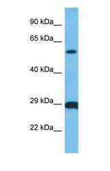 Western blot of MPIP2 Antibody with human MDA-MB-435s Whole Cell lysate.  This image was taken for the unconjugated form of this product. Other forms have not been tested.