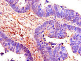 Immunohistochemistry of paraffin-embedded human ovarian cancer using CDC25B Antibody at dilution of 1:100