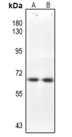 Western blot analysis of CDC25B expression in HEK293T (A), PC3 (B) whole cell lysates.