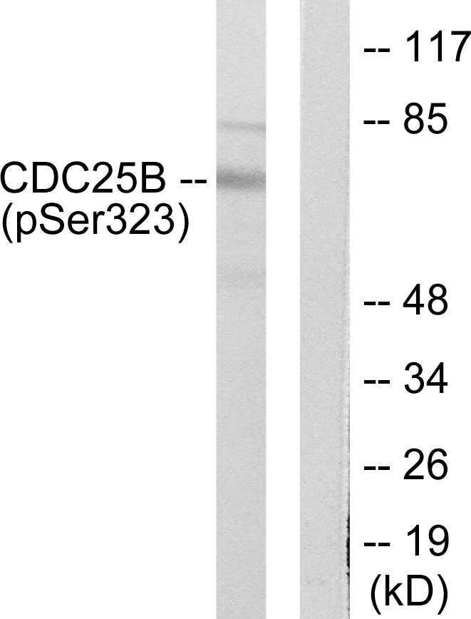 Western blot of extracts from NIH/3T3 cells treated with PMA (125ng/ml, 30mins), using CDC25B (Phospho-Ser323) antibody (#A0063)