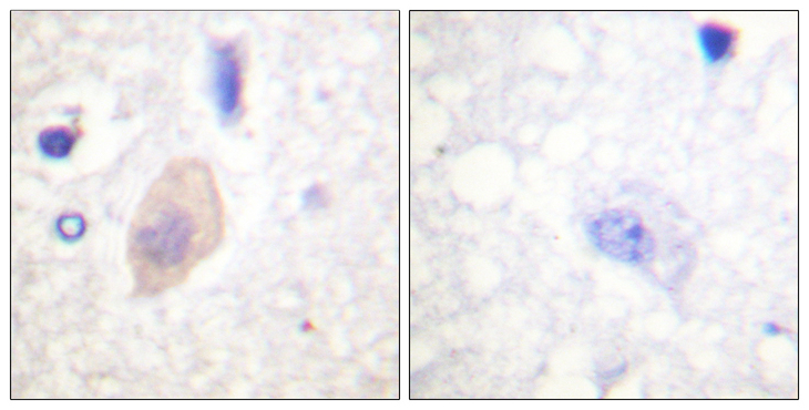 Immunohistochemistry analysis of paraffin-embedded human brain, using CDC25B (Phospho-Ser353) Antibody. The picture on the right is blocked with the phospho peptide.
