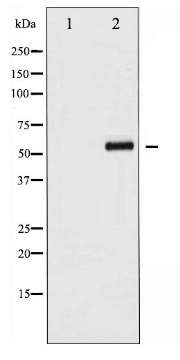 Western blot of CDC25B phosphorylation expression in etoposide treated COS7 whole cell lysates,The lane on the left is treated with the antigen-specific peptide.