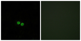 Immunofluorescence analysis of HepG2 cells, using CDC25C Antibody. The picture on the right is blocked with the synthesized peptide.