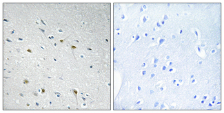 Immunohistochemistry analysis of paraffin-embedded human brain tissue, using CDC25C Antibody. The picture on the right is blocked with the synthesized peptide.