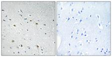 CDC25C Antibody - Immunohistochemistry analysis of paraffin-embedded human brain tissue, using CDC25C Antibody. The picture on the right is blocked with the synthesized peptide.