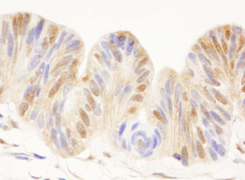Detection of Human CDC25c by Immunohistochemistry. Sample: FFPE section of human ovarian carcinoma. Antibody: Affinity purified rabbit anti-CDC25c used at a dilution of 1:1000 (1 ug/ml).