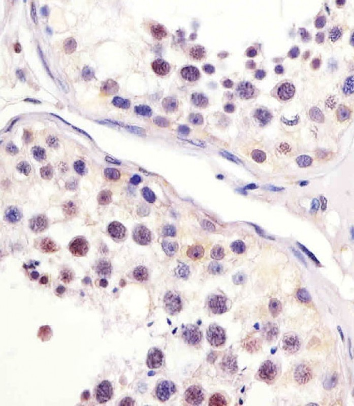 Antibody staining MPIP3 in human testis sections by Immunohistochemistry (IHC-P - paraformaldehyde-fixed, paraffin-embedded sections). Tissue was fixed with formaldehyde and blocked with 3% BSA for 0. 5 hour at room temperature; antigen retrieval was by heat mediation with a citrate buffer (pH 6). Samples were incubated with primary antibody (1:25) for 1 hours at 37°C. A undiluted biotinylated goat polyvalent antibody was used as the secondary antibody.