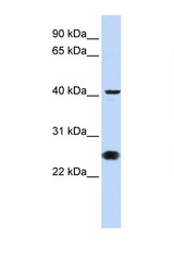 CDC25C antibody Western blot of Jurkat Cell lysate. Antibody concentration 1 ug/ml. This image was taken for the unconjugated form of this product. Other forms have not been tested.
