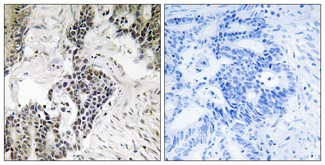 Immunohistochemistry analysis of paraffin-embedded human colon carcinoma, using CDC25C (Phospho-Ser198) Antibody. The picture on the right is blocked with the phospho peptide.