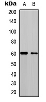 Western blot analysis of CDC25C (pS216) expression in HEK293T (A); A549 (B) whole cell lysates.