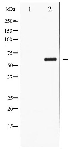 Western blot of CDC25C phosphorylation expression in serum treated HUVEC whole cell lysates,The lane on the left is treated with the antigen-specific peptide.