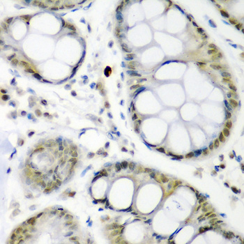 CDC27 Antibody - Immunohistochemistry of paraffin-embedded human colon carcinoma using CDC27 antibody at dilution of 1:200 (40x lens).