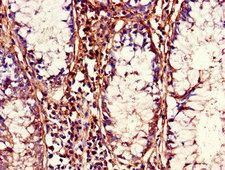 CDC37 Antibody - Immunohistochemistry of paraffin-embedded human colon cancer using CDC37 Antibody at dilution of 1:100