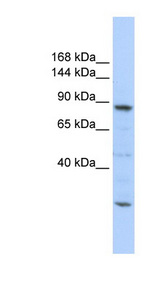 CDC5L antibody Western blot of 721_B cell lysate. This image was taken for the unconjugated form of this product. Other forms have not been tested.