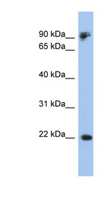 CDH1 / E Cadherin antibody Western blot of 293T cell lysate. This image was taken for the unconjugated form of this product. Other forms have not been tested.