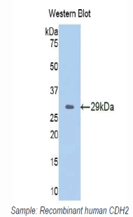 CDH2 / N Cadherin Antibody - Western blot of recombinant CDH2 / N Cadherin.  This image was taken for the unconjugated form of this product. Other forms have not been tested.
