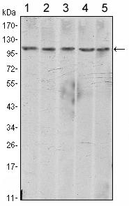 Western blot using CDH2 mouse monoclonal antibody against A431 (1), NIH/3T3 (2), HeLa (3), C6 (4) and LNCap (5) cell lysate.