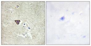 IHC of paraffin-embedded human brain tissue, using CDH9 Antibody. The picture on the right is treated with the synthesized peptide.