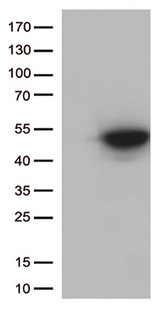 CDK15 / ALS2CR7 Antibody - HEK293T cells were transfected with the pCMV6-ENTRY control. (Left lane) or pCMV6-ENTRY CDK15. (Right lane) cDNA for 48 hrs and lysed. Equivalent amounts of cell lysates. (5 ug per lane) were separated by SDS-PAGE and immunoblotted with anti-CDK15. (1:500)
