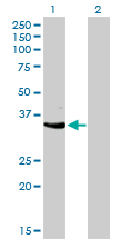 Western blot of CDK3 expression in transfected 293T cell line by CDK3 monoclonal antibody (M01), clone 3C12.