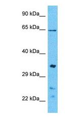 Western blot of CDK3 Antibody with human 293T Whole Cell lysate.  This image was taken for the unconjugated form of this product. Other forms have not been tested.