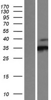 CDK3 Protein - Western validation with an anti-DDK antibody * L: Control HEK293 lysate R: Over-expression lysate