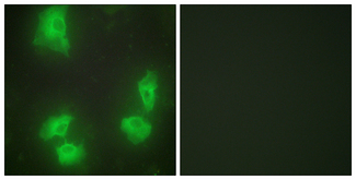 Immunofluorescence analysis of HeLa cells, using CDK5R1 Antibody. The picture on the right is blocked with the synthesized peptide.