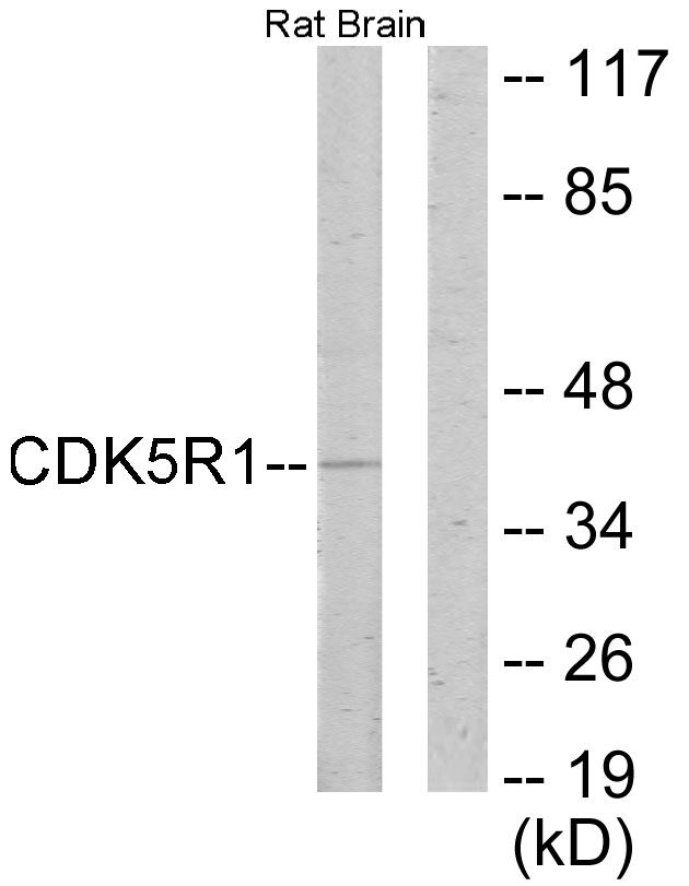 Western blot analysis of lysates from rat brain cells, using CDK5R1 Antibody. The lane on the right is blocked with the synthesized peptide.