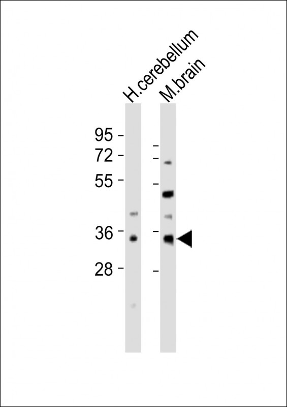 All lanes : Anti-CDK5R1 Antibody at 1:2000 dilution Lane 1: human cerebellum lysates Lane 2: mouse brain lysates Lysates/proteins at 20 ug per lane. Secondary Goat Anti-Rabbit IgG, (H+L), Peroxidase conjugated at 1/10000 dilution Predicted band size : 34 kDa Blocking/Dilution buffer: 5% NFDM/TBST.