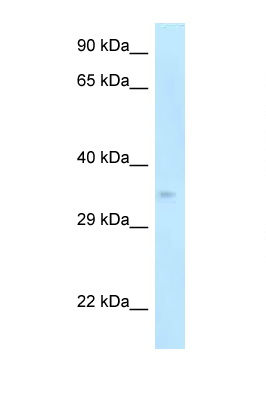 CDK5R1 / p35 antibody Western blot of Mouse Pancreas lysate. Antibody concentration 1 ug/ml.  This image was taken for the unconjugated form of this product. Other forms have not been tested.